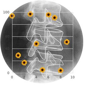 Maxillonasal dysplasia, Binder type