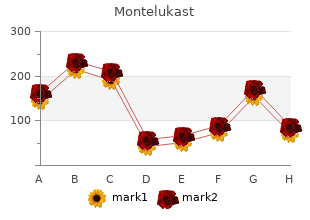 discount montelukast 10 mg without a prescription
