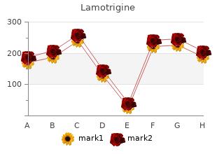 order lamotrigine 200 mg with amex