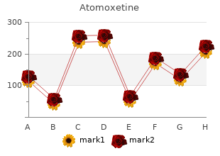generic 40mg atomoxetine mastercard