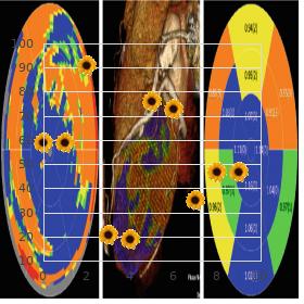 Craniosynostosis exostoses nevus epibulbar dermoid