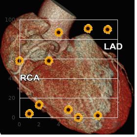Doxorubicin-induced cardiomyopathy