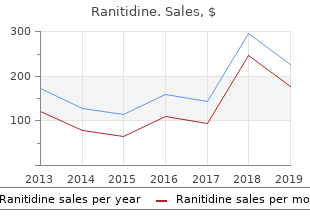 order ranitidine 300 mg with visa