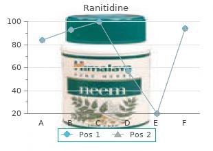 buy cheap ranitidine 300mg