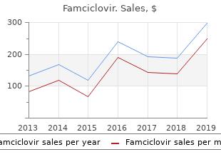 buy 250 mg famciclovir with mastercard