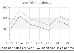 ranitidine 150mg for sale