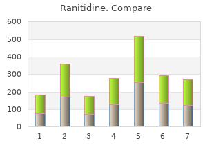 generic ranitidine 300 mg without prescription