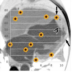 Pierre Robin sequence faciodigital anomaly