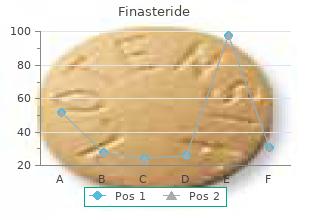 buy generic finasteride 1mg on line