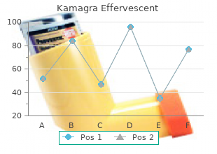 buy kamagra effervescent 100 mg low cost