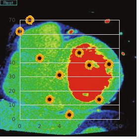 Cataract anterior polar dominant