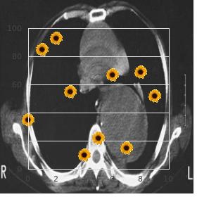 Lennox Gastaut syndrome