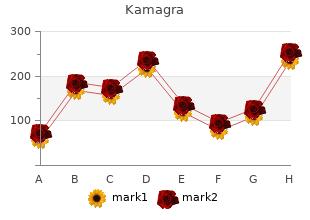 buy 100 mg kamagra overnight delivery
