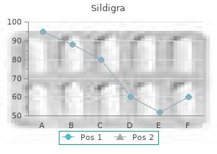 order sildigra 50mg on line