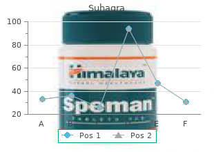 suhagra 100mg online