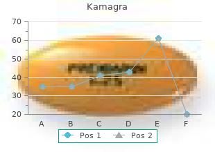 kamagra 50mg low cost