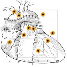 Craniosynostosis Fontaine type