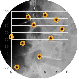 Pseudohermaphrodism anorectal anomalies