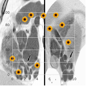 Epidermolysis bullosa simplex, Koebner type