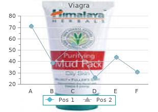 cheap viagra 50 mg line