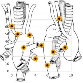Garret Tripp syndrome