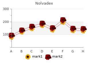 cheap nolvadex 10 mg mastercard