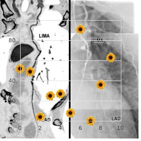 Mental retardation skeletal dysplasia abducens palsy
