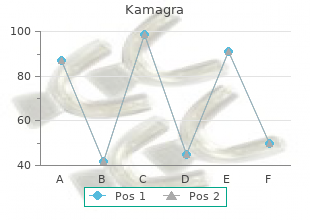 discount kamagra 100 mg without prescription