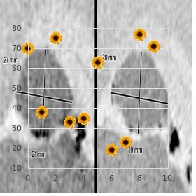 Mitral regurgitation deafness skeletal anomalies