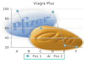 generic 400 mg viagra plus fast delivery