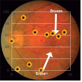 Xeroderma pigmentosum, type 7