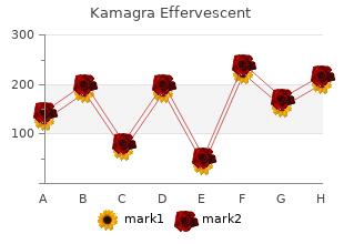 buy 100 mg kamagra effervescent mastercard