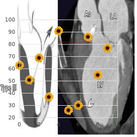 Vascular disruption sequence