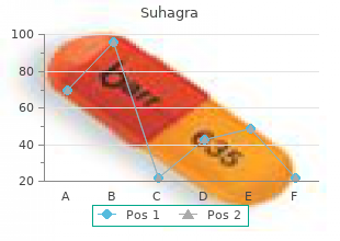 generic 100 mg suhagra overnight delivery