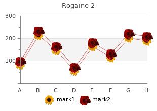 generic rogaine 2 60 ml without a prescription