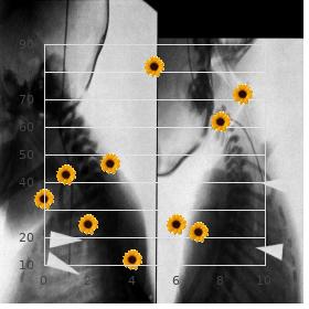 Splenogonadal fusion limb defects micrognatia