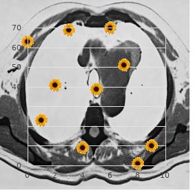 Frontonasal dysplasia Klippel Feil syndrome