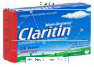 purchase 10mg claritin amex