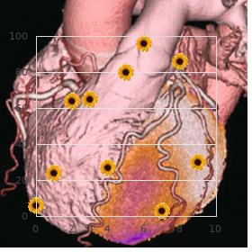 Spinocerebellar ataxia amyotrophy deafness